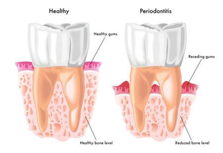 Parodontologia (Cura della Parodontite/Piorrea)